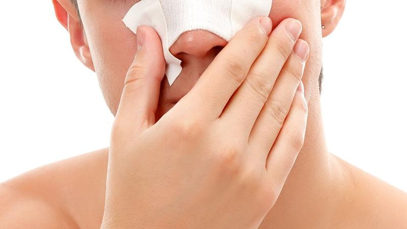 注意!专家提醒孩子鼻出血后不可抬头后仰,长期反复出血要警惕